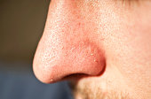 Close-up of human facial pores and squeezed out whiteheads