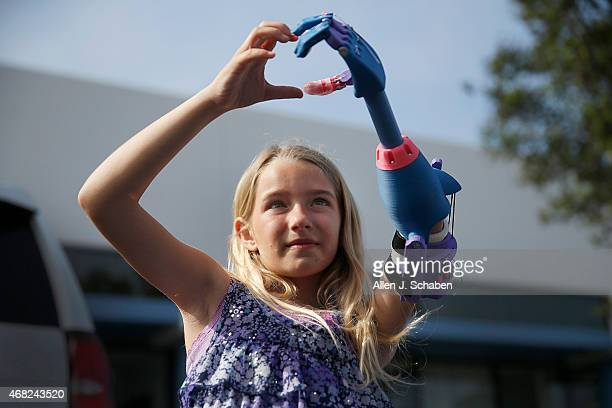 Faith Lennox of Lakewood makes a heart with her new left hand made by a 3D printer at Los Alamitos' Build it Workspace on March 31 2015 in Los...