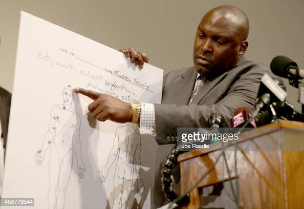 Family attorney for Michael Brown Daryl Parks points to an autopsy diagram showing where the gun shots hit Michael Brown during a press conference at...