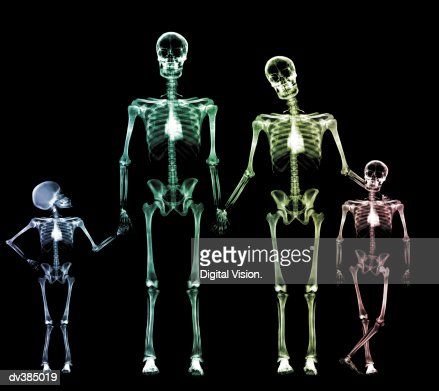 xray human body of a man with skeleton for study stock photo, Skeleton