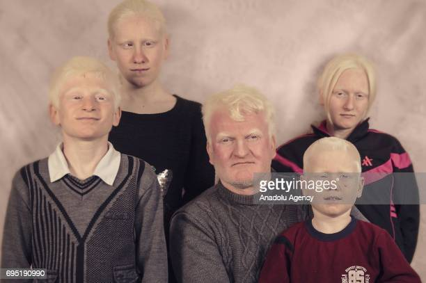 A family with albinism Idris Kubra Busra Berat and Abdurrahman Adin pose for a photo in Mardin province of Turkey on December 21 2016 Albinos a rare...