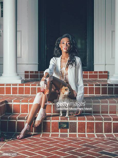 Fashion model Winnie Harlow is photographed at her home for Paris Match on March 28 2015 in Beverly Hills California
