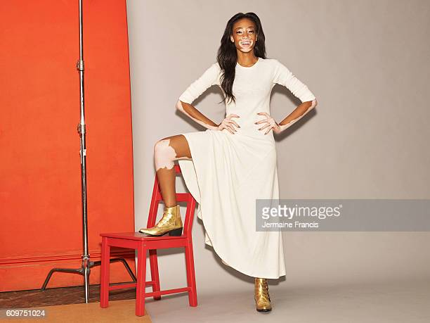 Fashion model Winnie Harlow is photographed for the Sunday Times on August 3 2016 in London England