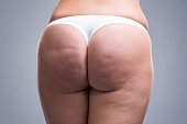Fat female body with cellulite, fatty hips and buttocks, gray background, studio shot
