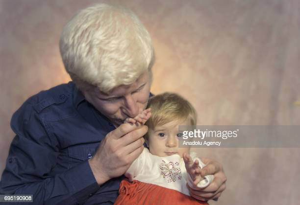 A father and daughter with albinism Hakan and Azra pose for a photo in Istanbul province of Turkey on June 12 2017 Albinos a rare group of genetic...