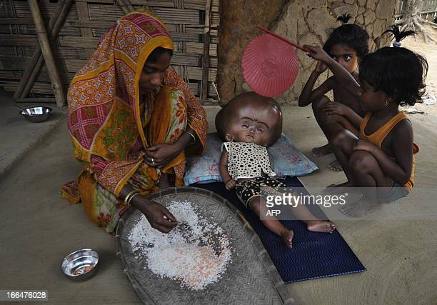 Fatima Khatun sifts through rice next to her eighteen month old daughter Roona Begum suffering from Hydrocephalus in which cerebrospinal fluid builds...