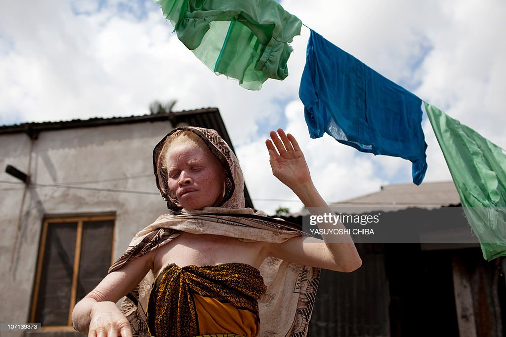 Fatuma Sultan a Tanzanian albino and the sister of albino member of Tanzania's Albino United football club Fikiri Sultan hangs clothes to dry in...