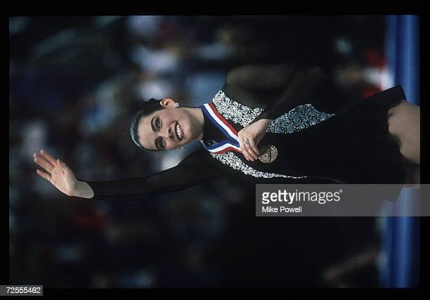 Nancy Kerrigan with the medal she won for first place at the 1993 US Figure Skating Nationals