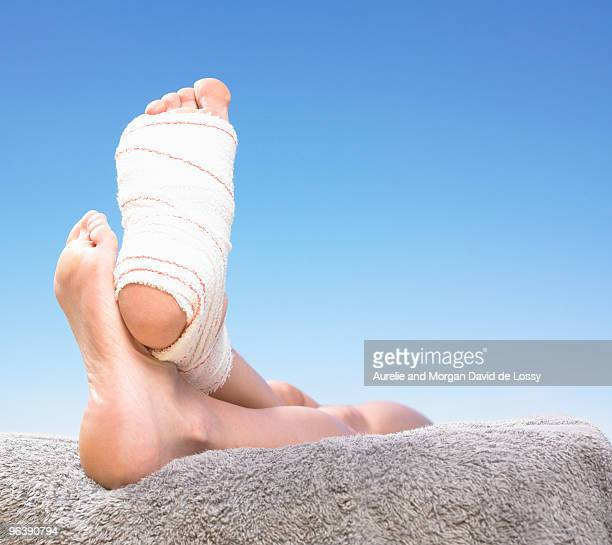 feet with bandage