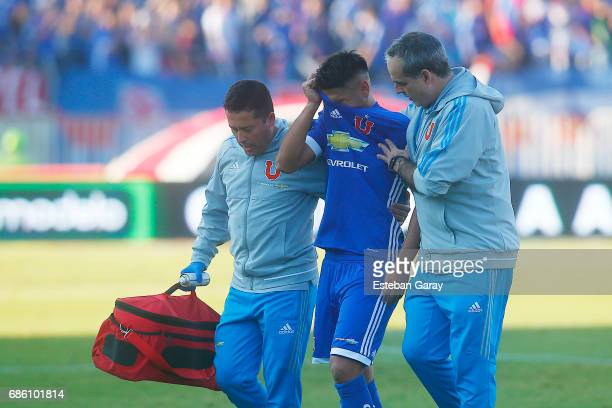 Felipe Mora of Universidad de Chile is assisted by the medics during a match between Universidad de Chile v San Luis de Quillota as part of Torneo...