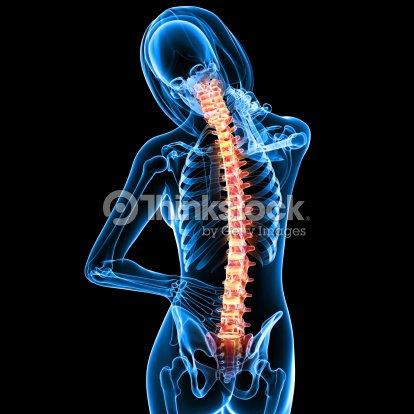 Hembra Dolor De Espalda Anatomía En Negro Foto de stock | Thinkstock