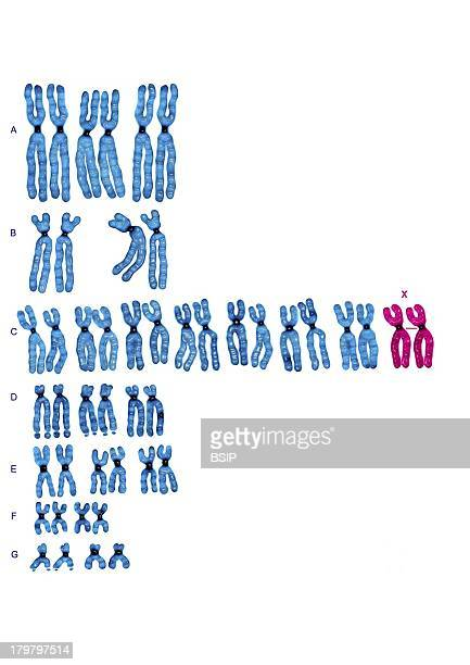 Female Caryotype Chromosomes Sorted By Group According To The Classification Of Denvers Here Pair Xx Girl