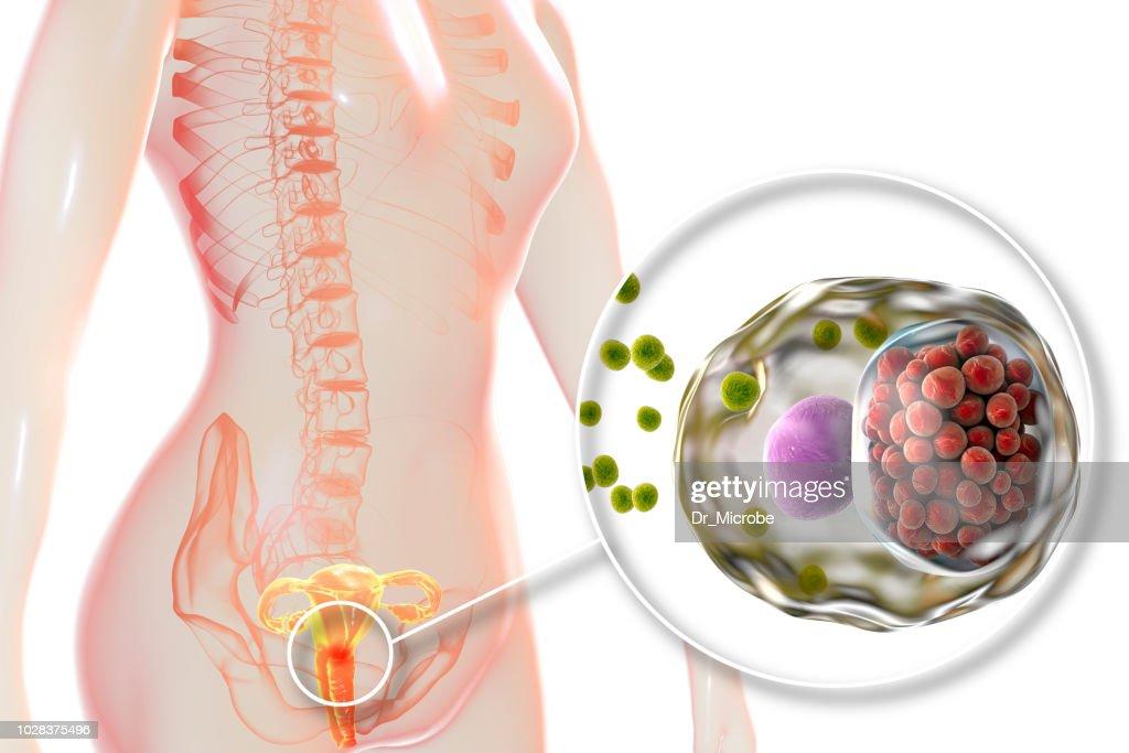 Beckenentzündung - Fotos, Lizenzfreie Bilder und Stockfotos