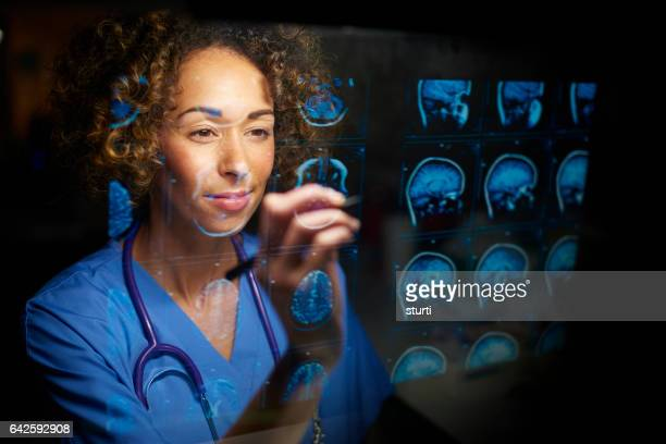 female doctor checking mri scans