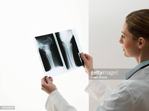 Female doctors looking at x-rays