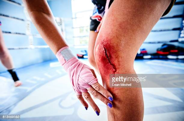 Female fighter with injured knee in gym