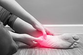 Female foot heel pain with red spot, plantar fasciitis