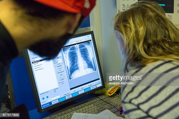 A female radiographer Diana reviews a young man's digital chest xray checking for abnormalities associated with tuberculosis and other chest...