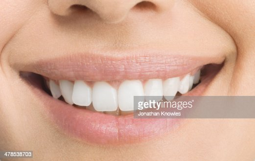 Female smiling, perfect teeth, close up