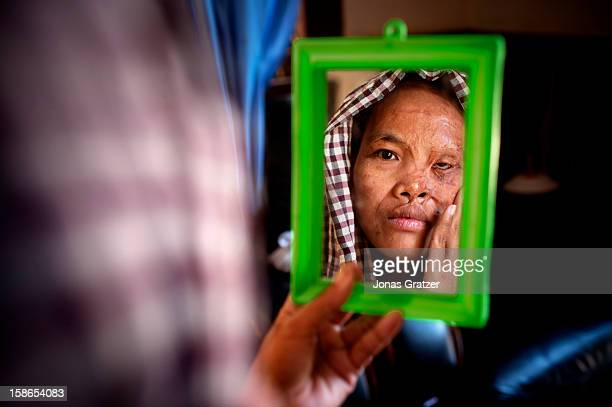 A female victim of an acid attack looks in to a mirror at her burned face In the recent years acid attacks become prominent issues in Cambodia...
