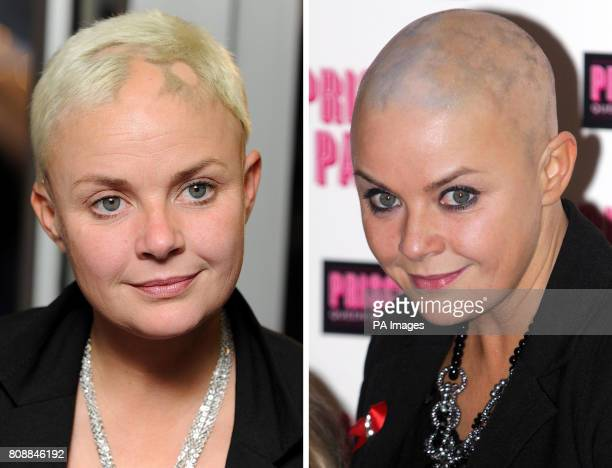 File photos dated 24/3/2010 and 24/1/2011 of Gail Porter who has stepped out with a shaved head again following the return of her alopecia