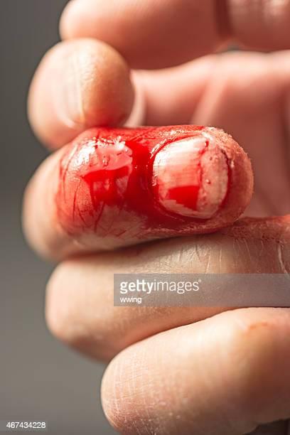 frsh dito con un taglio ancora sanguinamento. Sfondo nero