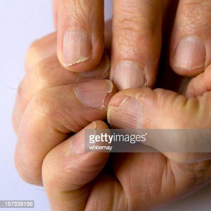 Fingernail disaster zone