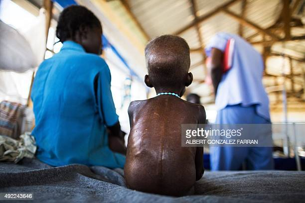 A fiveyearold boy with a severe malnutrition rests on a bed on October 9 2015 at the Aweil State Hospital in Aweil Northern Bahr ElGazhal This state...