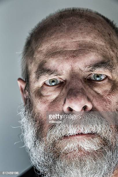 Flaky Face Skin Senior Adult Man Ominous Staring Close-Up Portrait