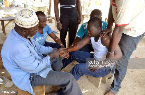 Folo Drissa Lougue the healer of the village of Kalembouly uses shea butter and hot water to massage a man's fractured arm on March 27 2015 According...