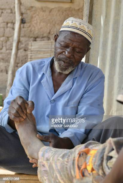 Folo Drissa Lougue the healer of the village of Kalembouly uses shea butter to massage the foot of a man on March 27 2015 According to legend the...