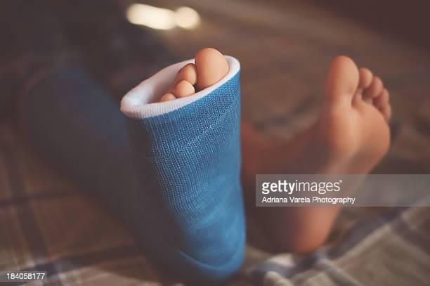 Foot cast