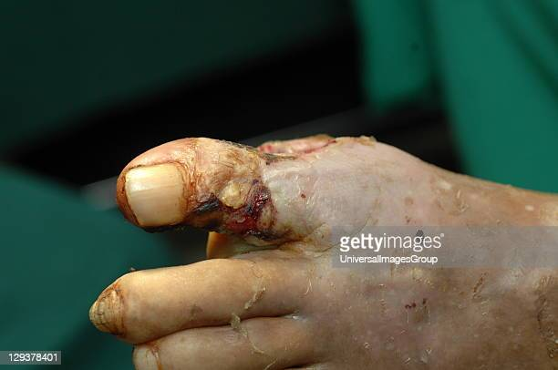 Foot with widespread destruction of human tissues due to bacterial infection Diabetics are more susceptible to bacterial infections as high blood...