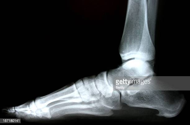 Große X-ray