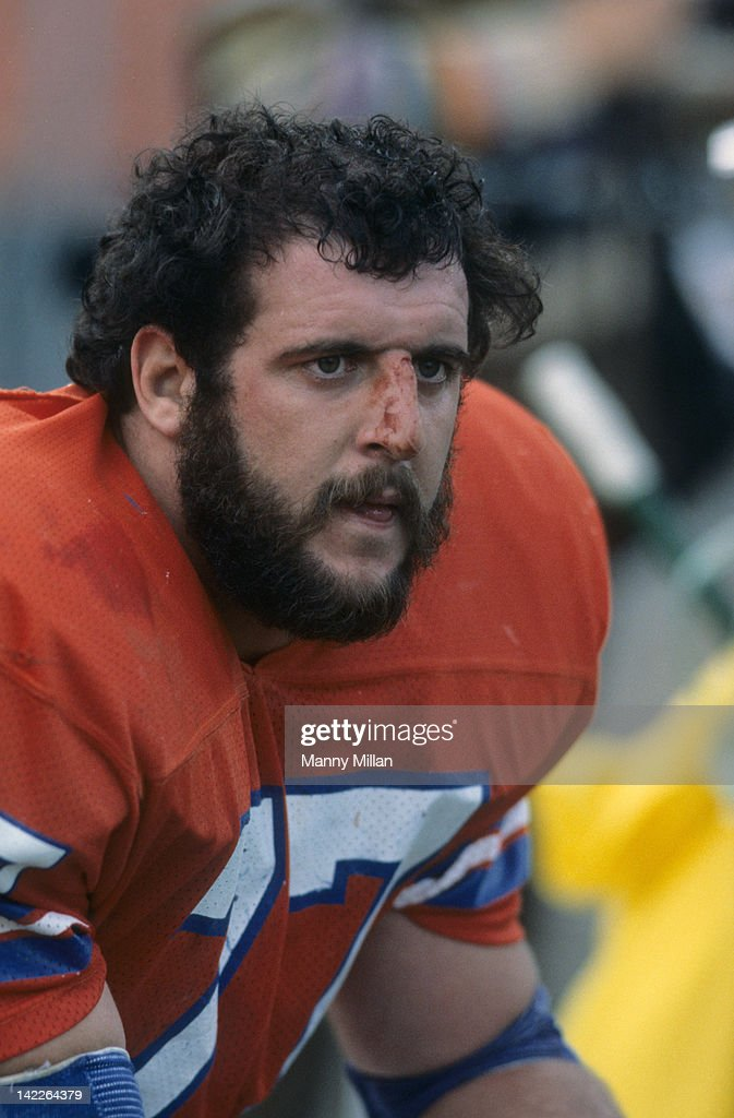 Closeup portrait of Dener Broncos <a gi-track='captionPersonalityLinkClicked' href=/galleries/search?phrase=Lyle+Alzado&family=editorial&specificpeople=544733 ng-click='$event.stopPropagation()'>Lyle Alzado</a> (77) with bloody nose during game vs Kansas City Chiefs at Mile High Stadium. Manny Millan F9 )