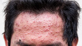 forehead of a man who having varicella blister or chickenpox ,isolated on white