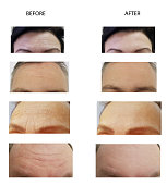 forehead wrinkles man and woman before and after