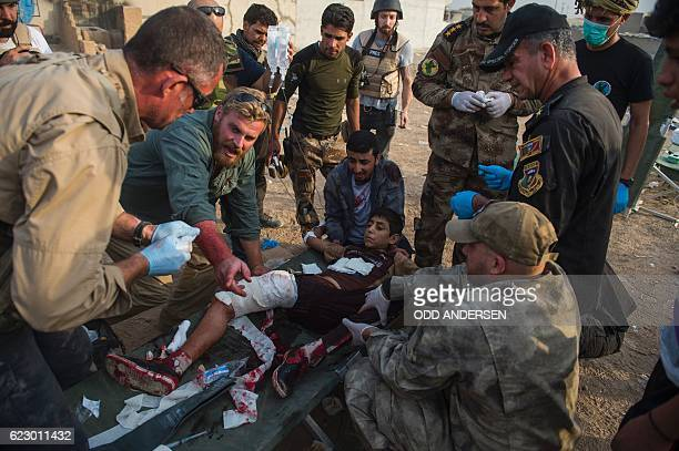 TOPSHOT Foreign volunteers treat 12yearold Mohammed at an outdoor field clinic in the Samah neighbourhood in Mosul on November 13 after he was hit in...