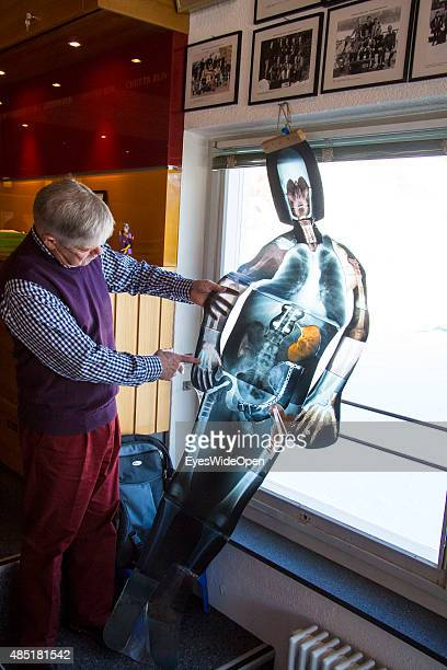 Former Cresta Club Secretary David Payne shows a collage of several Xray photographs of injuries and fractures at the famous traditional St Moritz...