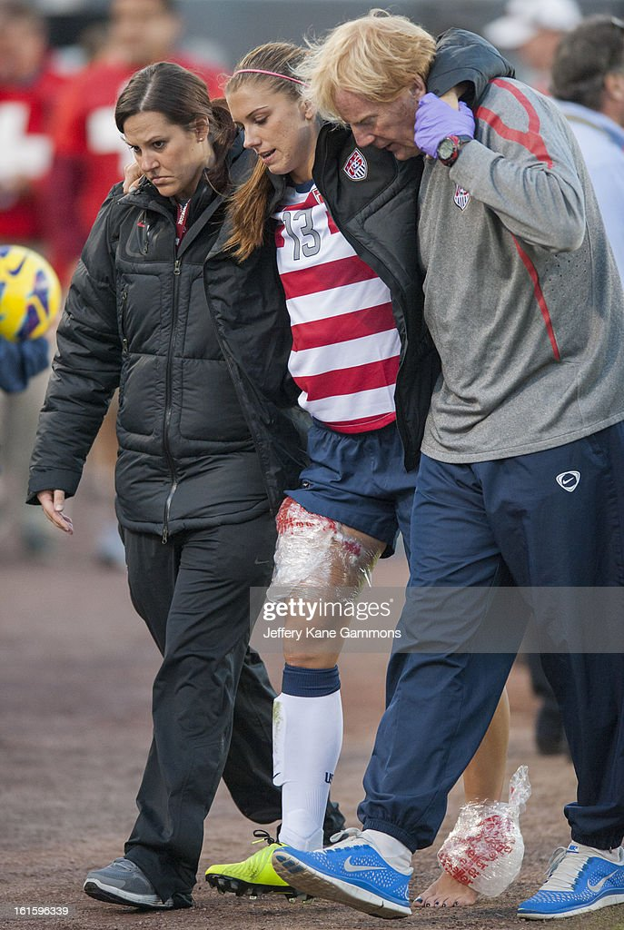 Forward Alex Morgan #13 of the United States is helped off the field after being injured on a play during the game against Scotland at EverBank Field on February 9, 2013 in Jacksonville, Florida.