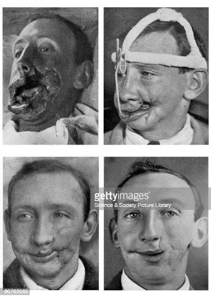 Four photographs documenting the facial reconstruction of a soldier whose cheek was extensively wounded during the Battle of the Somme Taken from...