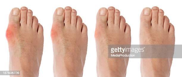 Vier Phasen orf gout arthritis