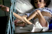 Fouryearold Pablo Gomez suffering from malnutrition lies in a bed at the Children's Hospital in Tucuman Argentina 14 November 2002 Argentine media...