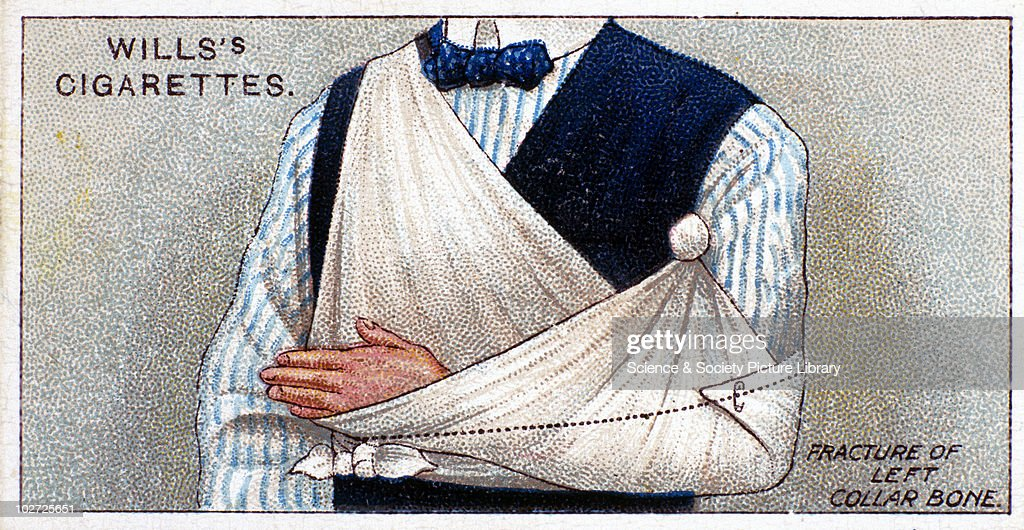 'Fracture of left collar bone'. Wills' cigarette card. Wills' cigarette card, 1913. One of a series of 50 'First Aid' cigarette cards issued by W.D. & H.O Wills. The bandage forms a sling, secured by a safety pin.