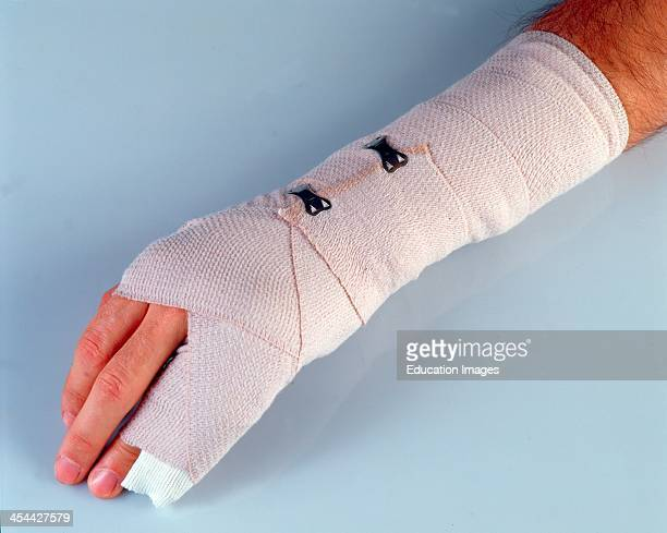 Fractured Hand In CaSt Wrapped In Ace Bandage