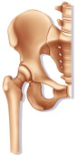 Fractured Hip Drawing Fracture Of The Femur Neck Linked To Osteoporosis