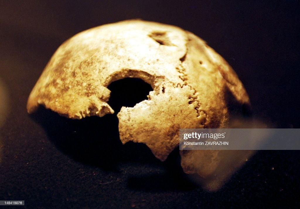 A fragment of bone that experts say has been proved by dental tests and other testimony to be Adolf Hitler's skull during an exhibition on April 26, 2000 in Moscow, Russia.