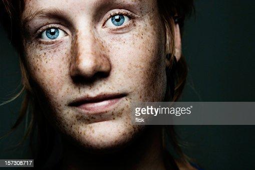 freckled portrait