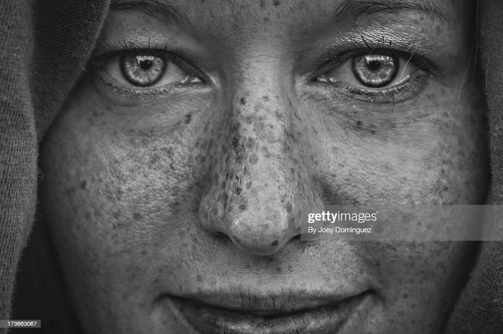 Freckles 1