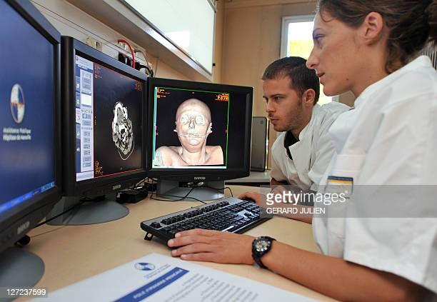 'A MARSEILLE DES AUTOPSIES VIRTUELLES AU SERVICE DE LA JUSTICE ET LA SANTE' French radiologists Marianne Jolibert and PierreEloi Laurent look at the...